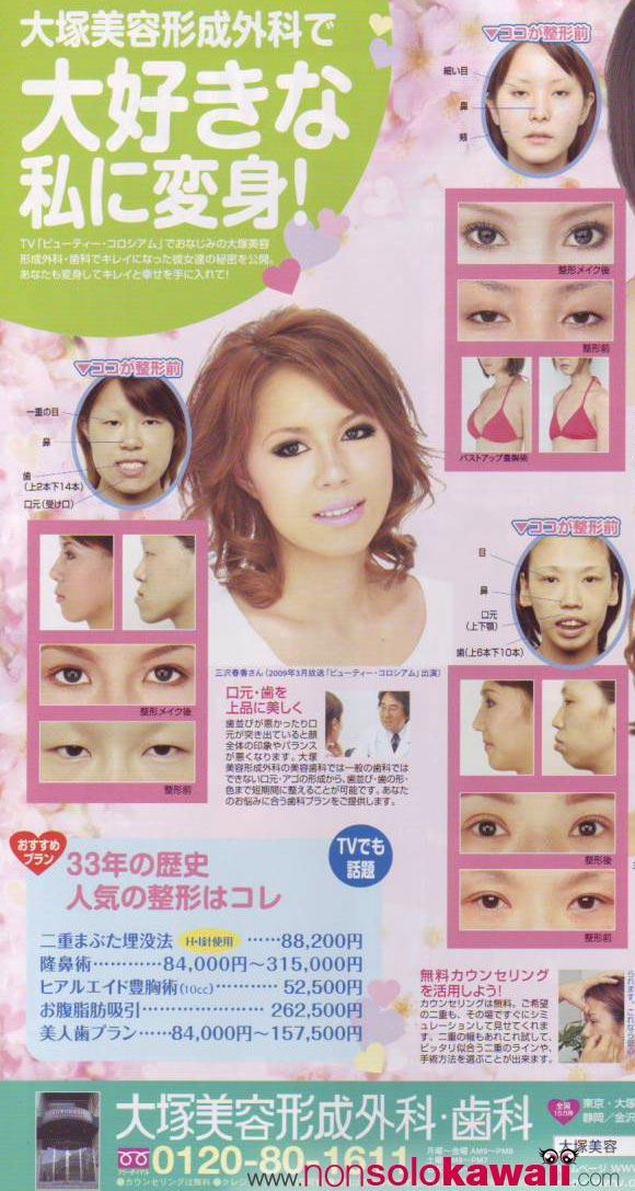 Koakuma Ageha -Interventi Estetici / Aesthetic Surgery June 2009